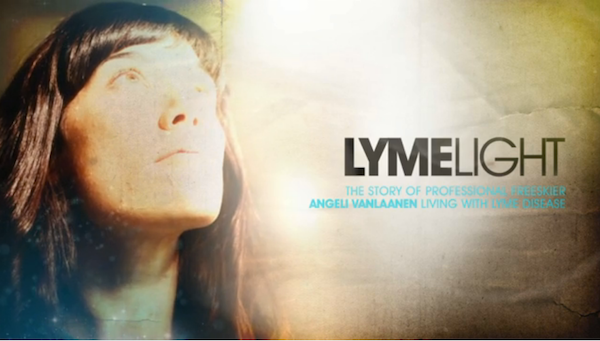 Entertainment What is Lyme Disease?